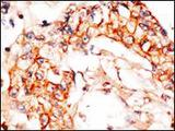 Formalin-fixed and paraffin-embedded human breast carcinoma reacted with anti-APPBP1 Antibody , which was peroxidase-conjugated to the secondary antibody, followed by DAB staining. This data demonstrates the use of this antibody for immunohistochemistry; clinical relevance has not been evaluated.