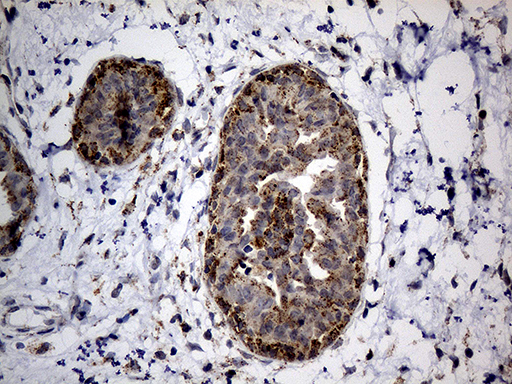 NAGA Antibody - Immunohistochemical staining of paraffin-embedded Human breast tissue within the normal limits using anti-NAGA mouse monoclonal antibody. (Heat-induced epitope retrieval by 1mM EDTA in 10mM Tris buffer. (pH8.5) at 120°C for 3 min. (1:500)