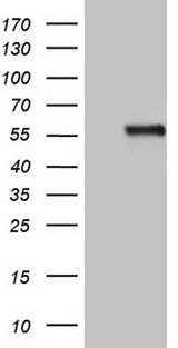 NAGA Antibody - HEK293T cells were transfected with the pCMV6-ENTRY control. (Left lane) or pCMV6-ENTRY NAGA. (Right lane) cDNA for 48 hrs and lysed