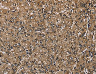 Immunohistochemistry of paraffin-embedded Human prostate cancer using NLRP4 Polyclonal Antibody at dilution of 1:40.