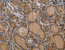 NALP4 / NLRP4 Antibody - Immunohistochemistry of paraffin-embedded Human prostate cancer using NLRP4 Polyclonal Antibody at dilution of 1:30.