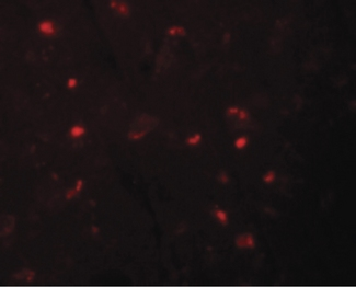 Immunofluorescence of NALP6 in human brain tissue with NALP6 antibody at 20 ug/ml.