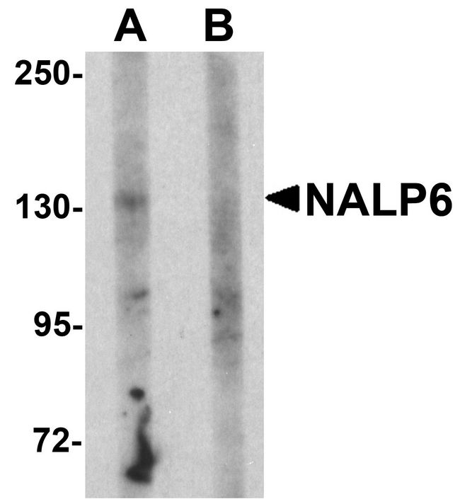 NALP6 / NLRP6 Antibody - Western blot analysis of NALP5 in mouse brain tissue lysate with NALP5 antibody at 1 ug/ml in (A) the absence and (B) the presence of blocking peptide.