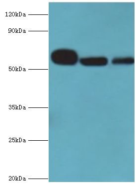 Western blot. All lanes: Nicotinamide phosphoribosyltransferase antibody at 4 ug/ml. Lane 1: mouse heart tissue. Lane 2: mouse liver tissue. Lane 3: mouse skeletal muscle tissue. Secondary antibody: Goat polyclonal to rabbit at 1:10000 dilution. Predicted band size: 56 kDa. Observed band size: 56 kDa.