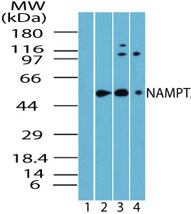 Western blot of NAMPT/Visfatin in skeletal muscle lysate. Lane 1 shows pre-immune sera. Lane 2 shows human, Lane 3 shows mouse and Lane 4 shows rat skeletal muscle using NAMPT / Visfatin Antibody at 1:5000 dilution.