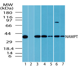 Western blot of NAMPT in multiple samples using Polyclonal Antibody to NAMPT/Visfatin at 1:1000. Lanes: 1. human spleen, 2. human spleen in the presence of immunizing/blocking peptide, 3. HeLa, 4. Jurkat, 5. Rh30, 6. T98G, 7. HCT-116.