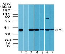 NAMPT / Visfatin Antibody - Western blot of NAMPT in multiple samples using Polyclonal Antibody to NAMPT/Visfatin at 1:1000. Lanes: 1. human spleen, 2. human spleen in the presence of immunizing/blocking peptide, 3. HeLa, 4. Jurkat, 5. Rh30, 6. T98G, 7. HCT-116.