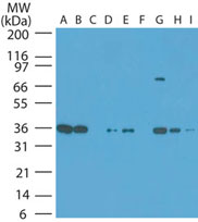 Western blot of NAMPT in human tumor cell lines at 1:1000. Lanes: A. HeLa, B. Jurkat, C. Daudi, D. HEK 293, E. Rh30, F. A375, G. T98G, H. HCT-116, I. Hep-2.