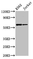 Western Blot Positive WB detected in:K562 whole cell lysate,Jurkat whole cell lysate All Lanes:NAMPT antibody at 2.7µg/ml Secondary Goat polyclonal to rabbit IgG at 1/50000 dilution Predicted band size: 56 KDa Observed band size: 56 KDa