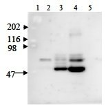 NAMPT / Visfatin Antibody - Immunodetection Analysis: Representative blot from a previous lot. Lane 1.protein marker; Lane 2.Reference control; Lane 3-4.Positive control, Hela and MD231 whole cell lysate; Lane 5.Negative control. The membrane blot was probed with antiVisfatin primary antibody(1µg/ml). Proteins were visualized using a goat anti-rabbit secondary antibody conjugated to HRP and chemiluminescence detection system. Arrows indicate cellular Visfatin from human and mouse cells (52 kDa).