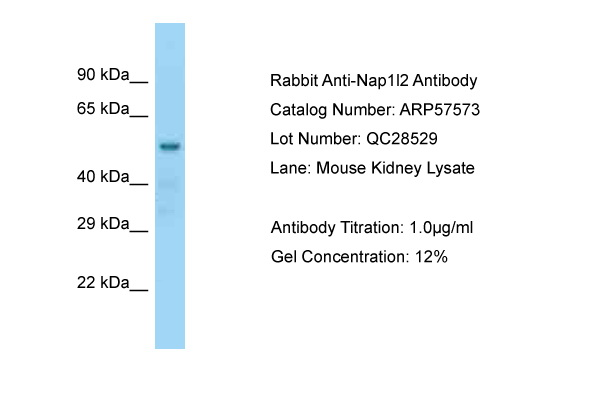 NAP1L2 / BPX Antibody -  This image was taken for the unconjugated form of this product. Other forms have not been tested.