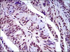 NAPSA / NAPA / Napsin A Antibody - IHC of paraffin-embedded rectum cancer tissues using NAPSA mouse monoclonal antibody with DAB staining.