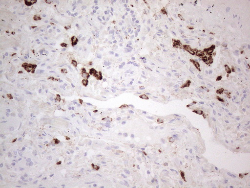 NAPSA / NAPA / Napsin A Antibody - Immunohistochemical staining of paraffin-embedded Carcinoma of Human lung tissue using anti-NAPSA mouse monoclonal antibody. (Heat-induced epitope retrieval by 1mM EDTA in 10mM Tris buffer. (pH8.5) at 110°C for 10 min. (1:150)