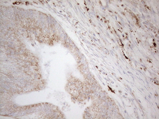 NAPSA / NAPA / Napsin A Antibody - Immunohistochemical staining of paraffin-embedded Adenocarcinoma of Human colon tissue using anti-NAPSA mouse monoclonal antibody. (Heat-induced epitope retrieval by 1mM EDTA in 10mM Tris buffer. (pH8.5) at 120°C for 3 min. (1:150)