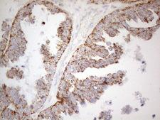 NAPSA / NAPA / Napsin A Antibody - Immunohistochemical staining of paraffin-embedded Adenocarcinoma of Human ovary tissue using anti-NAPSA mouse monoclonal antibody. (Heat-induced epitope retrieval by 1mM EDTA in 10mM Tris buffer. (pH8.5) at 120°C for 3 min. (1:150)