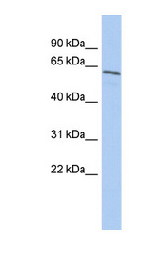 NARF antibody LS-C102560 Western blot of Fetal Spleen lysate.  This image was taken for the unconjugated form of this product. Other forms have not been tested.