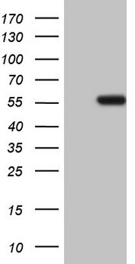 HEK293T cells were transfected with the pCMV6-ENTRY control (Left lane) or pCMV6-ENTRY NARS2 (Right lane) cDNA for 48 hrs and lysed. Equivalent amounts of cell lysates (5 ug per lane) were separated by SDS-PAGE and immunoblotted with anti-NARS2.
