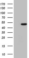 NARS2 Antibody - HEK293T cells were transfected with the pCMV6-ENTRY control (Left lane) or pCMV6-ENTRY NARS2 (Right lane) cDNA for 48 hrs and lysed. Equivalent amounts of cell lysates (5 ug per lane) were separated by SDS-PAGE and immunoblotted with anti-NARS2.