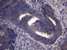 NARS2 Antibody - Immunohistochemical staining of paraffin-embedded Adenocarcinoma of Human colon tissue using anti-NARS2 mouse monoclonal antibody. (Heat-induced epitope retrieval by 1mM EDTA in 10mM Tris buffer. (pH8.5) at 120°C for 3 min. (1:150)
