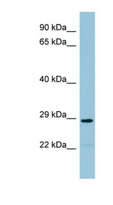NAT8B Antibody - NAT8B antibody Western blot of THP-1 cell lysate. This image was taken for the unconjugated form of this product. Other forms have not been tested.