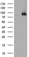 HEK293T cells were transfected with the pCMV6-ENTRY control (Left lane) or pCMV6-ENTRY NBN (Right lane) cDNA for 48 hrs and lysed. Equivalent amounts of cell lysates (5 ug per lane) were separated by SDS-PAGE and immunoblotted with anti-NBN.