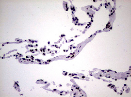 IHC of paraffin-embedded Human lung tissue using anti-NBN mouse monoclonal antibody.