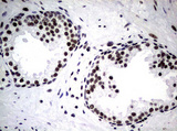 IHC of paraffin-embedded Human prostate tissue using anti-NBN mouse monoclonal antibody.