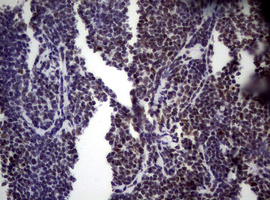 IHC of paraffin-embedded Human lymphoma tissue using anti-NBN mouse monoclonal antibody.