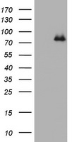 NBN / Nibrin Antibody - HEK293T cells were transfected with the pCMV6-ENTRY control (Left lane) or pCMV6-ENTRY NBN (Right lane) cDNA for 48 hrs and lysed. Equivalent amounts of cell lysates (5 ug per lane) were separated by SDS-PAGE and immunoblotted with anti-NBN.
