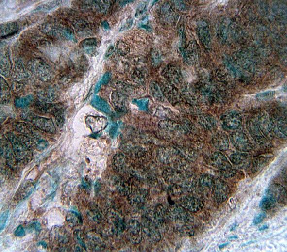 """NCAM / CD56 Antibody - Formalin-fixed, paraffin-embedded human neuroblastoma stained with Exalpha's CD56, clone C5.9 at 2 ug/ml using peroxidase-conjugate and DAP chromogen. Cell membrane staining of tumor cells is clearly evident. High-temperature heating was used as the retrieval protocol, pressure cooker with citrate buffer, pH 6.5, for 10 min. Exalpha's anti-CD56, clone C5.9, was added at 2 ug/ml for 1 hour at room temperature followed by anti-Mouse HRP for 30 minutes at room temperature. Staining was visualized using DAP and methyl green counter stain."""""""