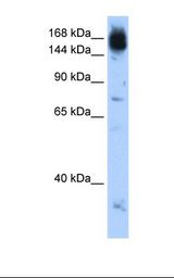 NCAPD2 Antibody - Jurkat cell lysate. Antibody concentration: 0.5 ug/ml. Gel concentration: 12%.  This image was taken for the unconjugated form of this product. Other forms have not been tested.