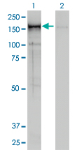 NCAPD2 Antibody - Western blot of CNAP1 expression in transfected 293T cell line by CNAP1 monoclonal antibody (M01), clone 4C12.