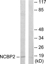 Western blot analysis of lysates from COLO205 cells, using NCBP2 Antibody. The lane on the right is blocked with the synthesized peptide.