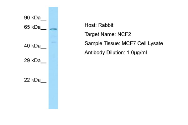NCF2 / NOXA2 / p67phox Antibody -  This image was taken for the unconjugated form of this product. Other forms have not been tested.