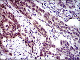 IHC of paraffin-embedded esophageal cancer tissues using CLGN mouse monoclonal antibody with DAB staining.