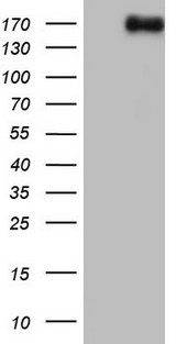 HEK293T cells were transfected with the pCMV6-ENTRY control (Left lane) or pCMV6-ENTRY NCOA2 (Right lane) cDNA for 48 hrs and lysed. Equivalent amounts of cell lysates (5 ug per lane) were separated by SDS-PAGE and immunoblotted with anti-NCOA2.