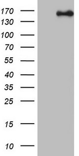 NCOA2 / TIF2 Antibody - HEK293T cells were transfected with the pCMV6-ENTRY control (Left lane) or pCMV6-ENTRY NCOA2 (Right lane) cDNA for 48 hrs and lysed. Equivalent amounts of cell lysates (5 ug per lane) were separated by SDS-PAGE and immunoblotted with anti-NCOA2.