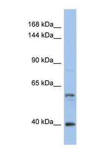 NCOA2 / TIF2 Antibody - Western blot of Human HT1080. NCOA2 antibody dilution 1.0 ug/ml.  This image was taken for the unconjugated form of this product. Other forms have not been tested.
