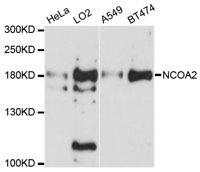 NCOA2 / TIF2 Antibody - Western blot analysis of extracts of various cell lines, using NCOA2 antibody at 1:1000 dilution. The secondary antibody used was an HRP Goat Anti-Rabbit IgG (H+L) at 1:10000 dilution. Lysates were loaded 25ug per lane and 3% nonfat dry milk in TBST was used for blocking. An ECL Kit was used for detection and the exposure time was 90s.