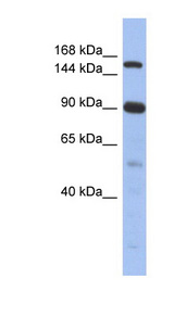 NCOA2 antibody Western blot of Fetal Thymus lysate. This image was taken for the unconjugated form of this product. Other forms have not been tested.