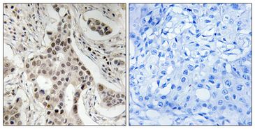 Immunohistochemistry analysis of paraffin-embedded human breast carcinoma, using NCoA2 (Phospho-Ser736) Antibody. The picture on the right is blocked with the phospho peptide.