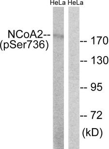NCOA2 / TIF2 Antibody - Western blot analysis of lysates from HeLa cells treated with TSA 400nM 24H, using NCoA2 (Phospho-Ser736) Antibody. The lane on the right is blocked with the phospho peptide.