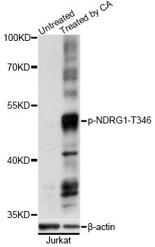 NDRG1 Antibody - Western blot analysis of extracts of Jurkat cells, using Phospho-NDRG1-T346 antibody at 1:2000 dilution. Jurkat cells were treated by Calyculin A (100nM) for 30 minutes. The secondary antibody used was an HRP Goat Anti-Rabbit IgG (H+L) at 1:10000 dilution. Lysates were loaded 25ug per lane and 3% nonfat dry milk in TBST was used for blocking. Blocking buffer: 3% BSA.An ECL Kit was used for detection and the exposure time was 1s.