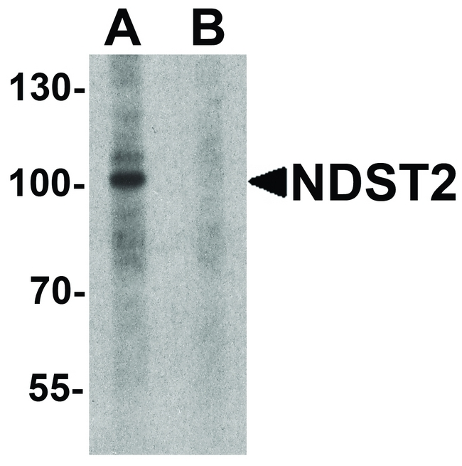 Western blot analysis of NDST2 in A-20 cell lysate with NDST2 antibody at 1 ug/ml in (A) the absence and (B) the presence of blocking peptide.