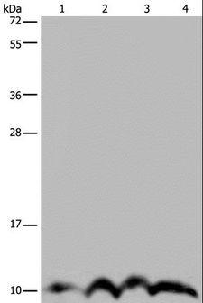 NDUFA4 Antibody - Western blot analysis of SKOV3 cell and human fetal liver tissue, human fetal brain tissue and HeLa cell, using NDUFA4 Polyclonal Antibody at dilution of 1:300.