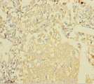Immunohistochemistry of paraffin-embedded human lung cancer using NDUFA6 Antibody at dilution of 1:100
