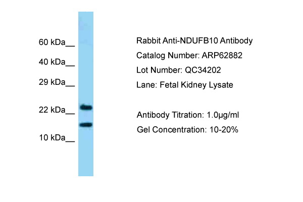 NDUFB10 Antibody -  This image was taken for the unconjugated form of this product. Other forms have not been tested.