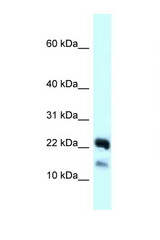 NDUFB10 antibody Western blot of 721_B Cell lysate. Antibody concentration 1 ug/ml.  This image was taken for the unconjugated form of this product. Other forms have not been tested.