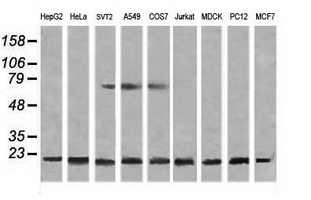 Western blot of extracts (35 ug) from 9 different cell lines by using g anti-NDUFB10 monoclonal antibody (HepG2: human; HeLa: human; SVT2: mouse; A549: human; COS7: monkey; Jurkat: human; MDCK: canine; PC12: rat; MCF7: human).