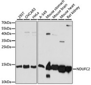NDUFC2 Antibody - Western blot analysis of extracts of various cell lines, using NDUFC2 antibody at 1:1000 dilution. The secondary antibody used was an HRP Goat Anti-Rabbit IgG (H+L) at 1:10000 dilution. Lysates were loaded 25ug per lane and 3% nonfat dry milk in TBST was used for blocking. An ECL Kit was used for detection and the exposure time was 5s.